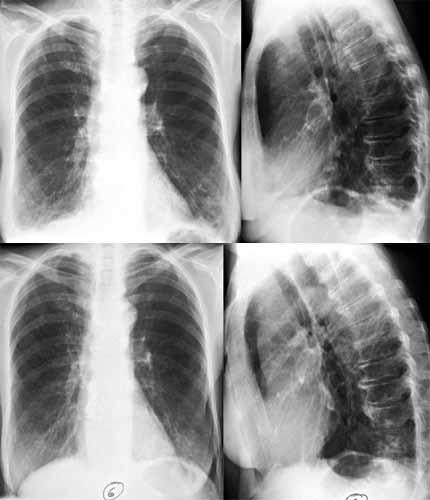 nach lungenentzündung wieder husten