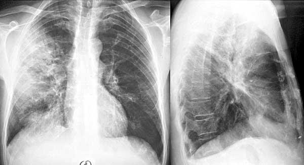 klebsiella-pneumoniae-vlagalishe