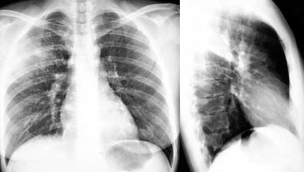 teaching file radiologic anatomy of the lung