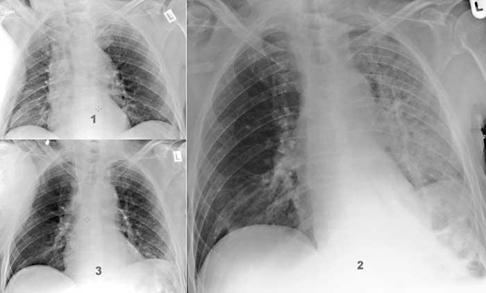 heilung für kranke lungen