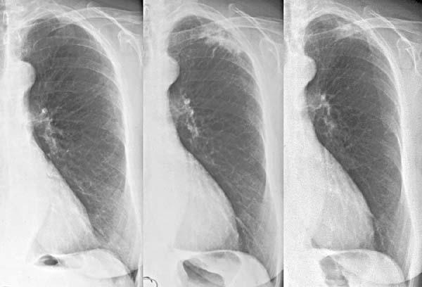 Tuberkulose Verlauf