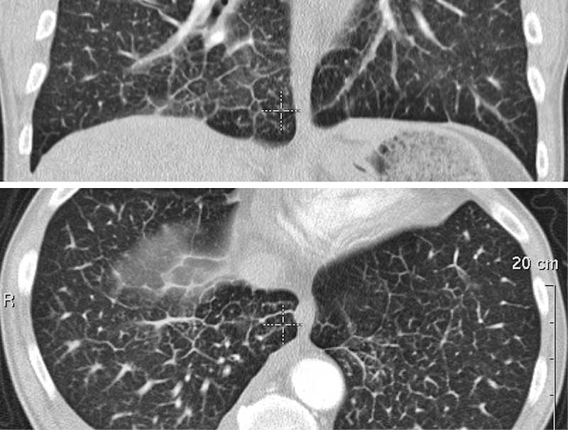 Ausgezeichnet Lungenanatomie Ct Bilder - Anatomie Ideen - finotti.info
