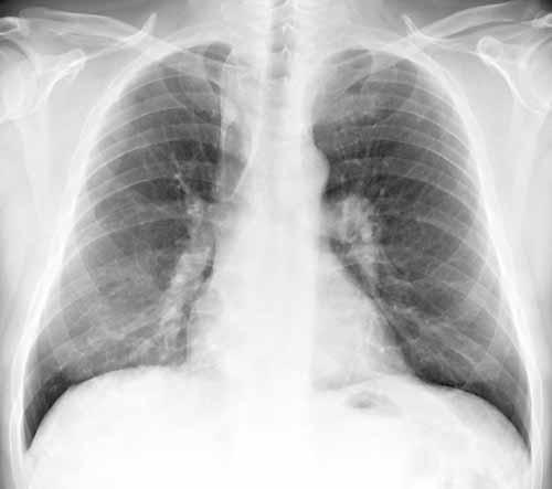 infiltrater i lungerne