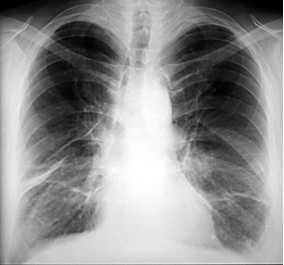 Fleck Auf Der Lunge