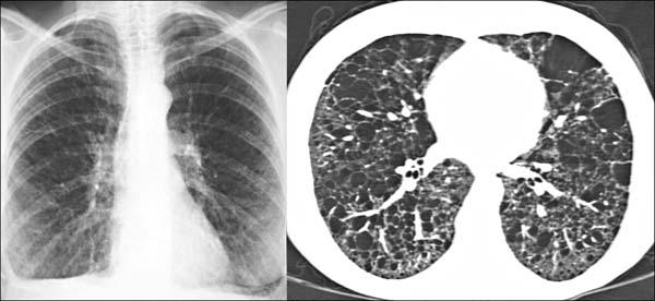 Punkte Auf Der Lunge