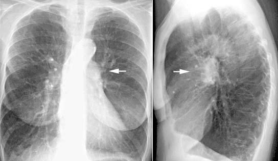 pulmonale stauung herzinsuffizienz