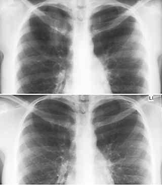 Sammlung Röntgenanatomie Des Thorax