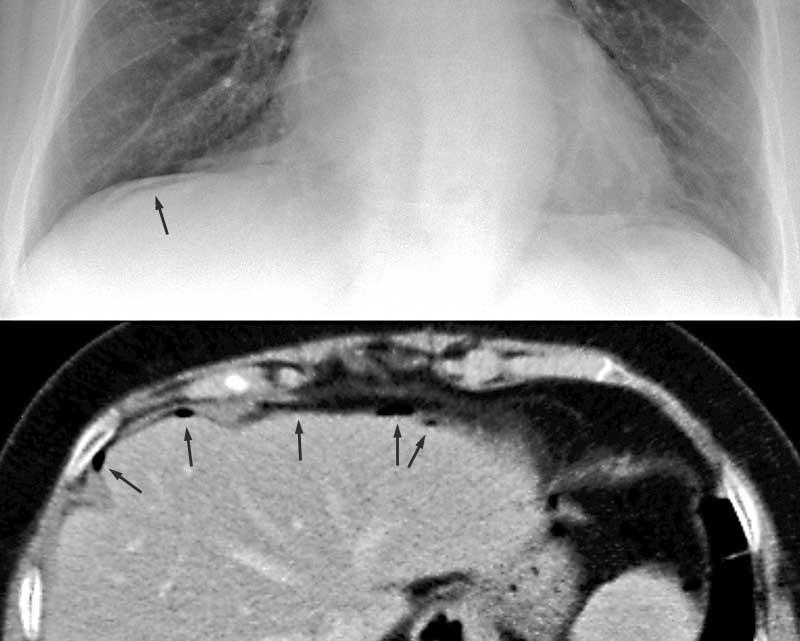 Sammlung Radiologie der Pleura