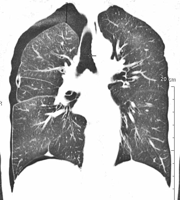 Mantelpneumothorax bilder