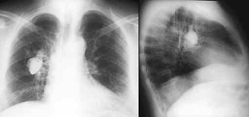 gutartiger tumor in der lunge