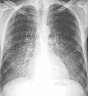 Radiologie Roentgen Diagnose Lungenkrankheiten Roentgenzeichen Dd