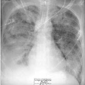 pneumonie nach aspiration