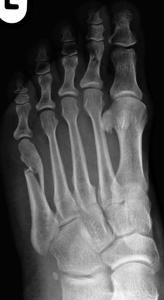 Sammlung Traumatologie Fußverletzungen