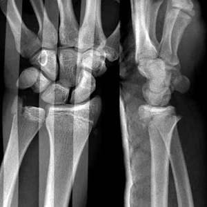 Traumatologie Für Den Handheld Palm Iphone Trauma Radiologie